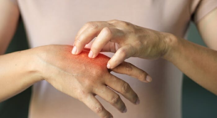Our skin is the largest and most sensitive organ in our bodies.